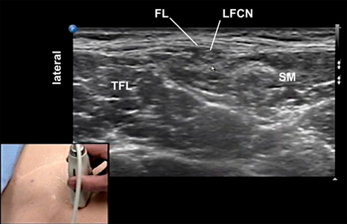 lateral femoral cutaneous nerve block, Muscles