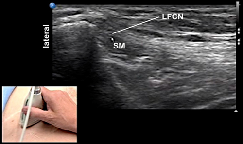 Lateral Femoral Cutaneous Nerve Block