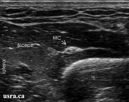 USRA - Peripheral Nerve Block - Musculocutaneous Nerve