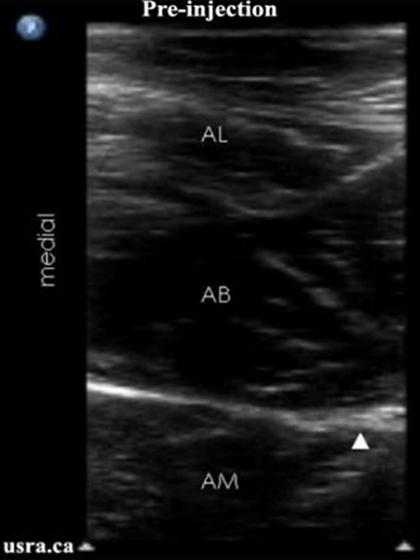 obturator nerve block, Muscles
