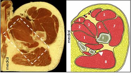 sciatic nerve block - proximal thigh region, Muscles
