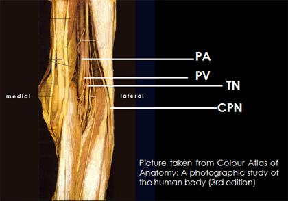 Sciatic Nerve Block - Popliteal Region
