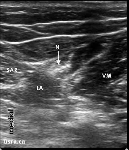saphenous nerve block, Muscles