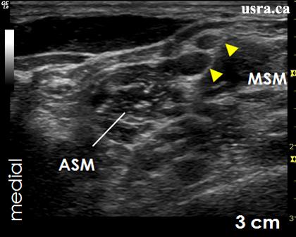 best ultrasound machine for regional anesthesia