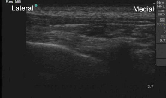 ultrasound guided intercostal nerve block