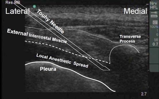 thoracic paravertebral block rh usra ca Ultrasound-Guided Femoral Nerve Block Ultrasound-Guided Genitofemoral Nerve Block