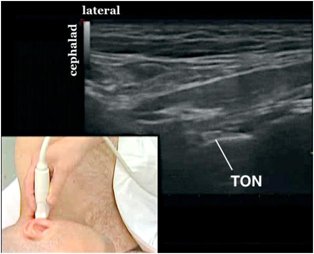 Third occipital nerve cervical medial branch block ton third occipital nerve sciox Images